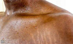 های پوستی 2 300x181 - «ترک های پوستی» چرا به وجود میآیند و چطور آنها را از بین ببریم؟