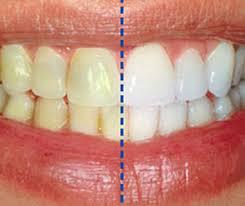 رنگ دندان - علت تغییر رنگ دندان ها چیست؟
