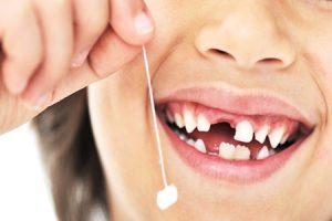 شیری 300x200 - مراقبت از دندان های شیری را جدی بگیرید