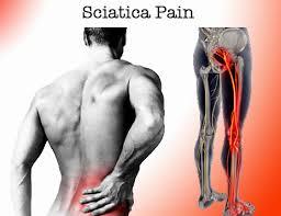 .jpg - علت اصلی درد سیاتیک