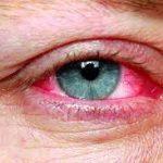 چشم 150x150 - دلایل قرمز شدن چشم را بدانید