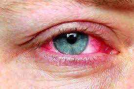 چشم - دلایل قرمز شدن چشم را بدانید