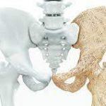 استخوان 150x150 - پوکی استخوان؛ نشانه ها، علائم و درمان